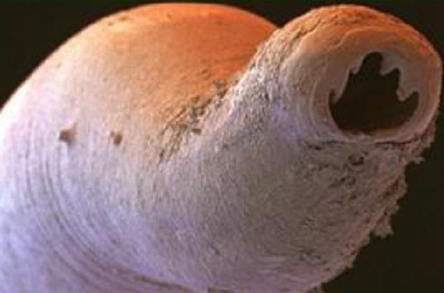 ancilostoma